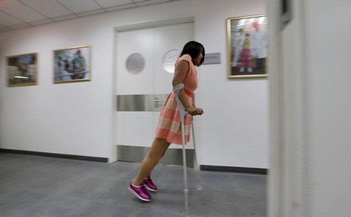 Theo các bác sĩ, đôi chân giả mới có thể nói là tốt nhất trên thế giới, nó sẽ giúp bệnh nhân có cuộc sống như những người bình thường.
