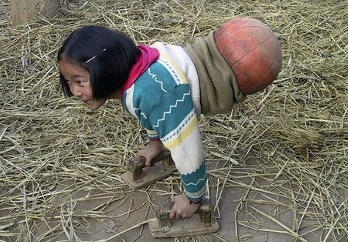 Để thích nghi với cuộc sống sau tai nạn, em đã nỗ lực học cách sử dụng đôi tay để di chuyển cơ thể, với sự hỗ trợ của một trái bóng rổ. Vì lẽ đó, người ta gọi em là cô bé bóng rổ.