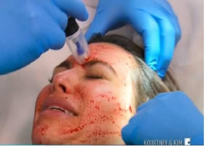 Tiêm máu lên da mặt