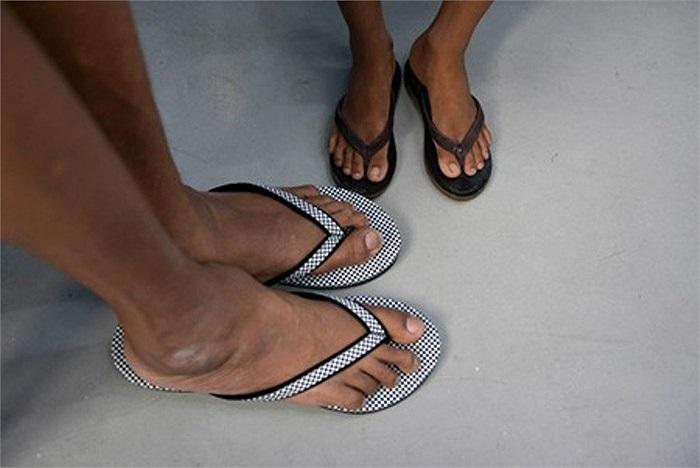 Bức ảnh này được chụp vào hôm 10/7 vừa qua, mô tả sự đối lập hoàn toàn giữa đôi chân anh Zaw và một người đàn ông bình thường.