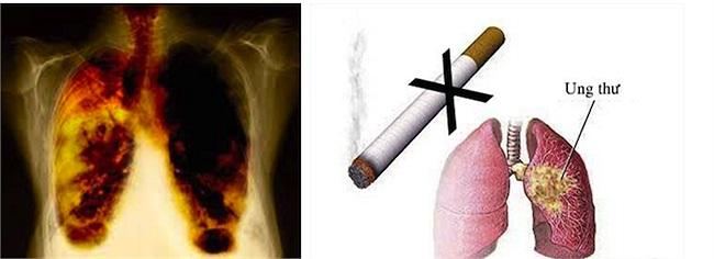 10. Ung thư khí quản, phế quản, và ung thư phổi: Các sản phẩm chứa nicôtin dường như sẽ ảnh hưởng đến bộ gen của con người. Hút thuốc càng nhiều và càng sớm thì nguy cơ bị ung thư phổi càng cao. Hằng năm, số người chết bởi ung thư phổi cao rất cao.