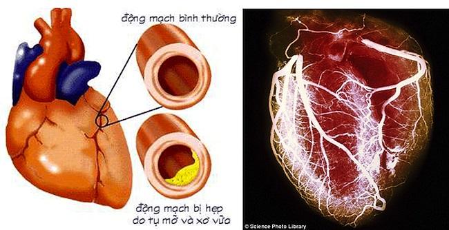 1. Bệnh tim thiếu máu cục bộ: 'Thiếu máu cục bộ' có nghĩa là một cơ quan (như tim) không nhận được đủ máu và oxy. Khi các động mạch đưa máu và oxy tới tim bị chặn, có nghĩa là bạn bị bệnh tim thiếu máu cục bộ. Bệnh dễ dẫn đến tử vong.