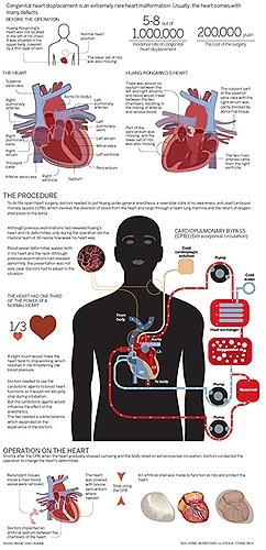 Huang Rongming vốn là công nhân tại một nhà máy, anh vừa trải qua cuộc đại phẫu để đưa trái tim lòi  ra từ bụng trở về vị trí ngực. Anh là một trường hợp đặc biệt khiến bác sĩ kinh ngạc. Vì căn bệnh  anh  mắc phải là cực hiếm.