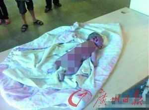 Hình ảnh thương tâm về bé sơ sinh chết cháy trong bệnh viện