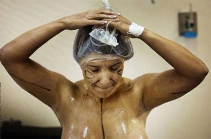 Một quý bà chuẩn bị cho hút mỡ không chỉ ở bụng mà còn ở cánh tay.
