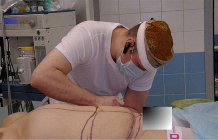 Thông thường, trước khi phẫu thuật, hoặc hút nội soi, bác sĩ phải vẽ để định hình phần da phải cắt bỏ, phần mỡ cần hút.