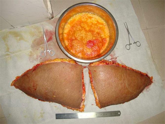 Bát bên cạnh là bát mỡ được hút ra từ bụng và eo của một bệnh nhân.