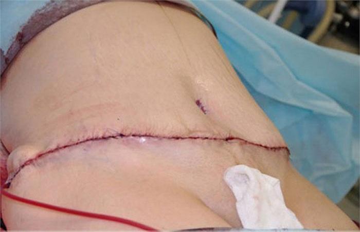 Sau khi da bụng được cắt bớt, mỡ được loại bỏ, da bụng sẽ được khâu lại thế này.