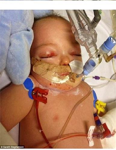Ngay sau đó, họ đưa bé vào bệnh viện trường đại học xứ Wales, nơi các bác sĩ chẩn đoán bé bị viêm màng não và cần phải sử dụng máy thở oxi.