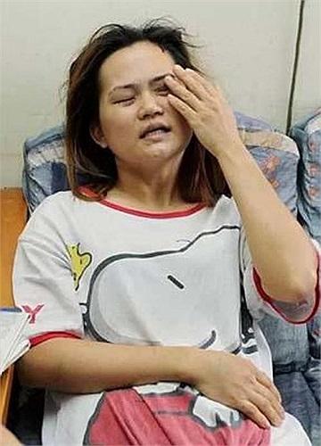 Hình ảnh thương tâm của chị Lim sau vụ bạo hành.