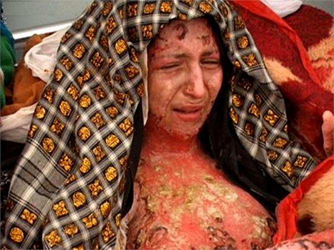 Chị Gulbar, một phụ nữ Afghanistan sau khi chung sống với chồng được 3 năm đã bỏ về nhà bố mẹ vì không chịu đựng được sự tra tấn hàng ngày và chị đã bị chính người chồng tàn nhẫn của mình bắt về tẩm xăng đốt cháy.
