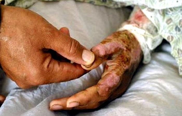 Đôi tay loang lổ vì bị bỏng.