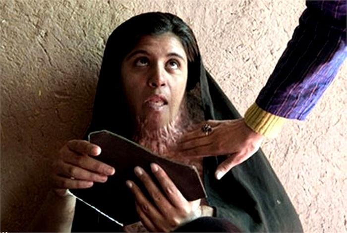Những vết sẹo trên cổ của Zarah là hậu quả của cuộc xô xát với chồng chỉ 3 tháng sau khi cô gái 19 tuổi này kết hôn.