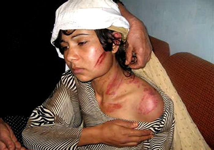 Gul Zam, cô gái 16 tuổi đã định tìm đến cái chết để tự giải thoát khỏi cuộc hôn nhân với người chồng vũ phu, đã đánh đập và xé rách quần áo.