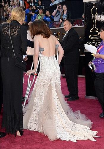 Theo tờ People, cách đây hai ngày, do bất cẩn, cô đã bị đứt chân khi vô tình giẫm vào một mảnh kính vỡ.