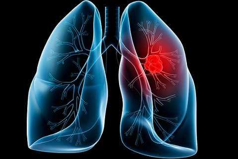 Ung thư phổi là căn bệnh ung thư gây tử vong hàng đầu ở nam giới