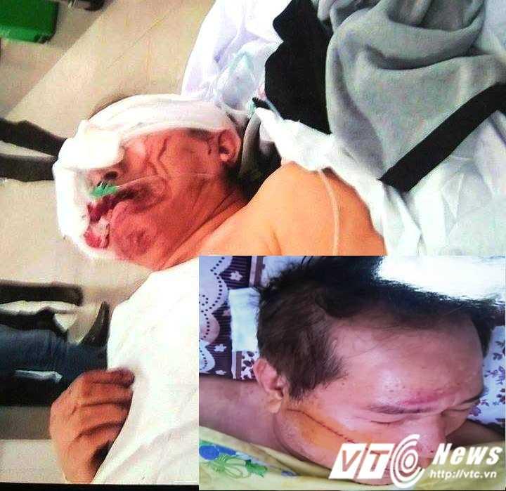 Ông Dương Quang Quýt bị đối tượng Vũ dùng mã tấu chém trọng thương, tổng thương tật là 51 %.