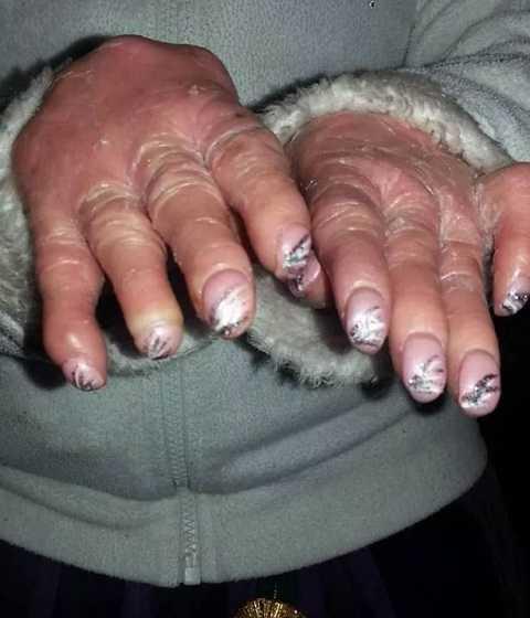 Nelly phải làm sạch da mỗi ngày để tránh viêm nhiễm