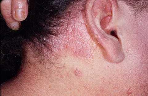 Xuất hiện các đốm màu đỏ cảnh báo bệnh vẩy nến