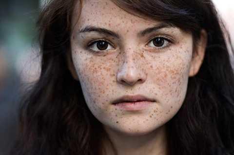 Tàn nhang xuất hiện sau cháy nắng cảnh báo việc gia tăng khối u ác tính trên da