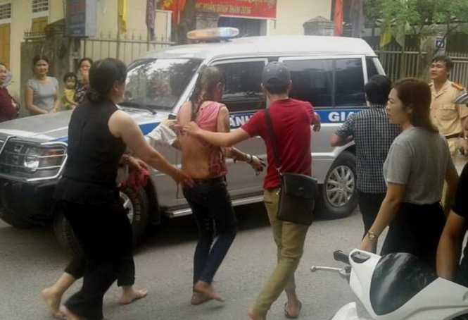 Chị Lan được người dân đưa đi vào viện cấp cứu sau khi bị đốt -  Ảnh: CTV