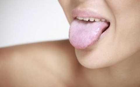 Rêu lưỡi màu trắng sữa là một biểu hiện trong các bệnh lý thường gặp.
