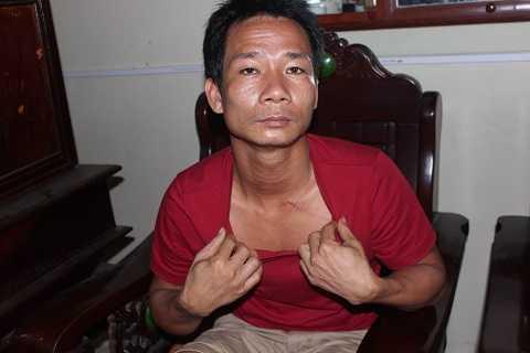Anh Quảng nói về những vết cứa trên cổ do bị dao kề trong nhiều giờ