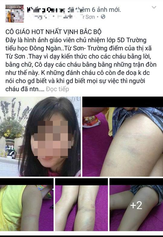 Hình ảnh học sinh bị đánh tím người (ảnh: Facebook)