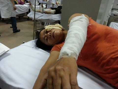 Một công nhân nữ khác đang nằm cấp cứu