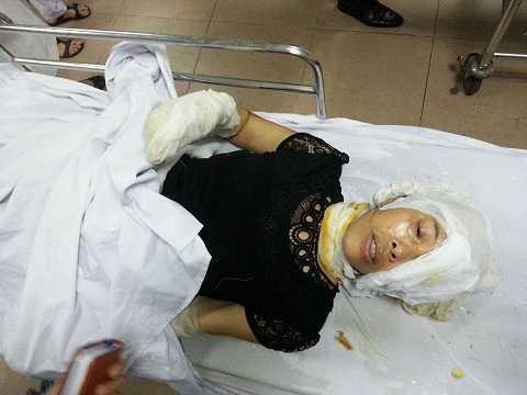 Một công nhân nữ bị thương sau vụ nổ, nằm cấp cứu tại bệnh viện