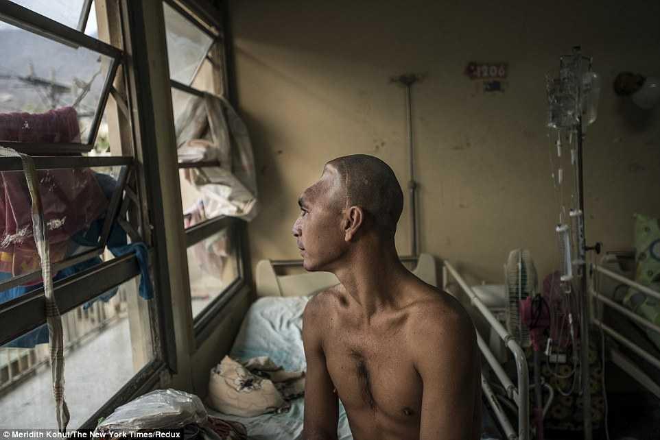 Julio Rafael Parucho, chờ đợi cả năm để điều trị chấn thương đầu vì thiếu bác sỹ