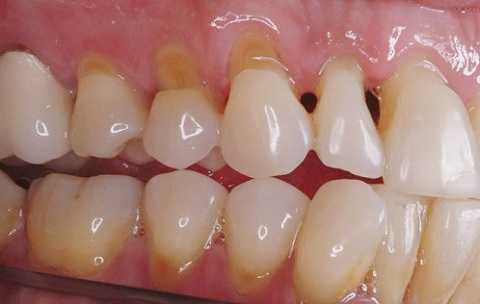Xỉa răng sau khi ăn nguy hiểm hơn bạn nghĩ
