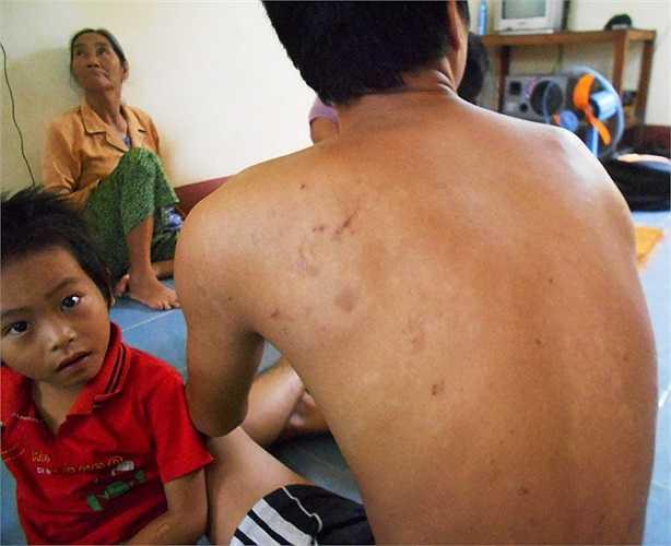 Khắp cơ thể anh Trần Văn Sang con chị Tý đầy rẫy những vết sẹo do côn trùng đốt để lại