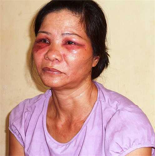 Vùng mắt chị Nguyễn Thị Tý bị sưng húp, đỏ tái, mọng mủ và đau rát do côn trùng lạ cắn