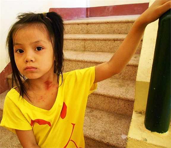Bệnh lạ xuất hiện trên vùng cổ của một em bé tại khu tái định cư phường Hương Sơ (TP.Huế)