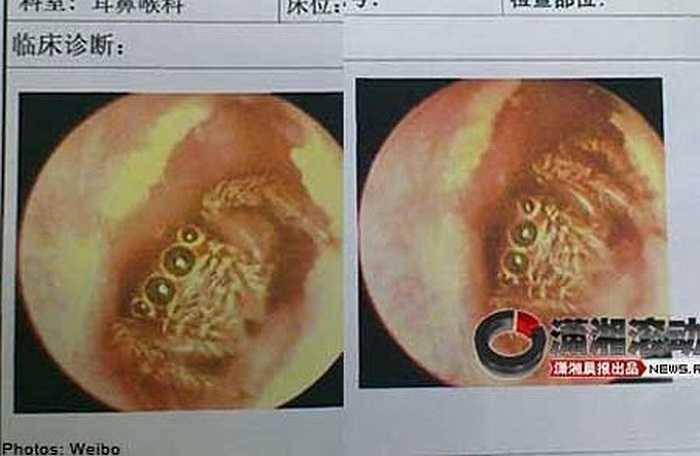 Chuyện tưởng chỉ có trong cổ tích, một con nhện đã làm tổ trong ống tai của một phụ nữ Trung Quốc trong năm ngày trước khi được các bác sỹ lấy ra.