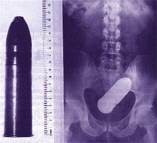 Đau khổ vì bị bệnh trĩ hành hạ, cựu chiến binh này đã dùng đầu đạn để nhét những khối trĩ và kết quả không may đã xảy ra. Nếu không có những bác sĩ can thiệp kịp thời rất có thể đầu đạn này đã phát nổ.