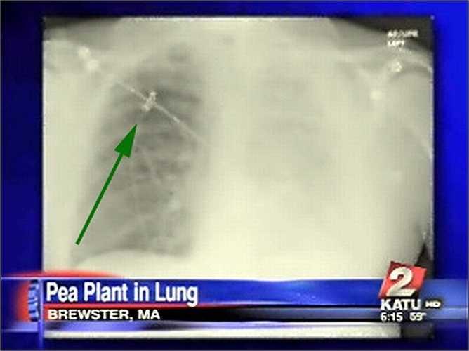 Tháng 6/2010, ông đến Bệnh viện Cape Cod để xét nghiệm và đã phát hiện một cây đậu cao 4cm đang mọc trong phổi.