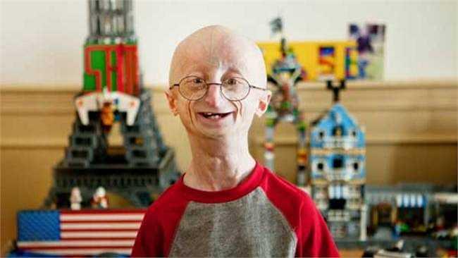 Sam Berns, chàng trai 17 tuổi nổi tiếng với căn bệnh già trước tuổi cùng nghị lực sống phi thường, đã 'trở về cát bụi' vào hôm 15/1 vừa qua.