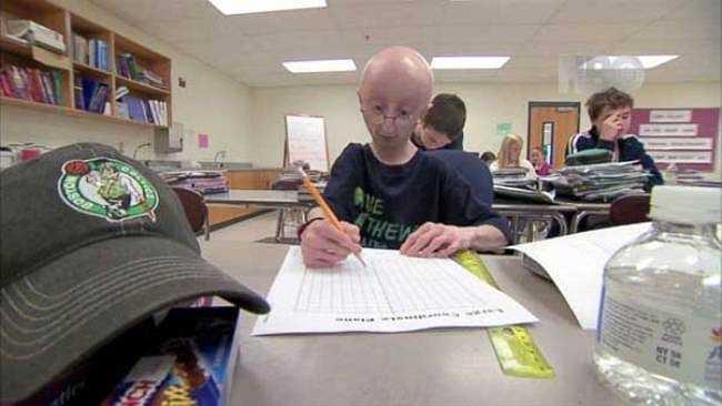 Nguyên nhân cái chết được cho là do những biến chứng phức tạp của căn bênh già trước tuổi ở trẻ em được gọi là Progeria.