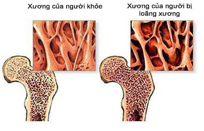 Bổ sung canxi sau khi mãn kinh: Khi bạn trải qua thời kỳ mãn kinh, hormone estrogen bảo vệ xương của bạn bị suy giảm mức độ lớn. Vì vậy, hãy bắt đầu bổ sung canxi ngay sau khi bạn ngừng kinh nguyệt.
