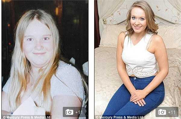 Không chịu khuất phục trước tình trạng của mình, cô gái trẻ quyết tâm giảm cân.