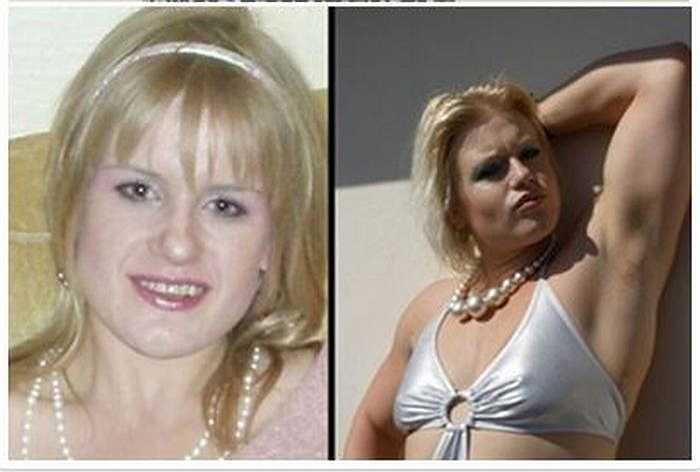 Trước đây, Candice 28 tuổi, London là một cô gái thanh mảnh, đẹp, tóc vàng.