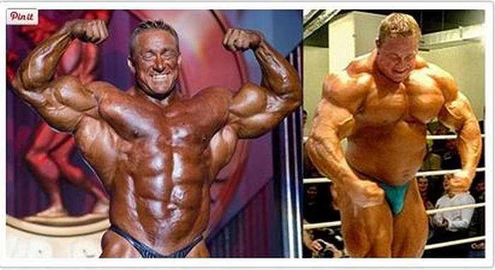 Markus Rühl, 41 tuổi, là một thể hình chuyên nghiệp của Đức đã sử dụng nhiều chất bổ sung khác nhau từ khi 18 tuổi bao gồm insulin và hormone tăng trưởng. Sau đó, ông bị chứng 'ruột lớn' – một dạng dạ dày bị căng phồng.