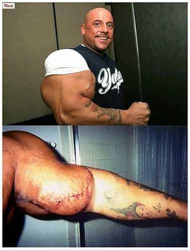 Greg Valentino đã nổi danh trên toàn thế giới với danh hiệu người đàn ông có cơ bắp lớn nhất thế. Sau đó, một cánh tay của Valentino đã bị gãy do tai nạn tại một giải đấu nhưng anh đã không đến viện và hậu quả là cánh tay của anh bị áp xe và buộc phải phẫu thuật.