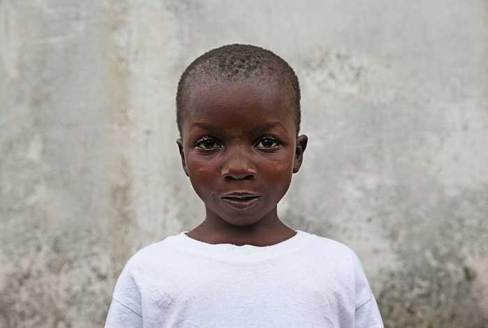 Abrahim Quota, 5 tuổi, sống sót sau khi được điều trị 10 ngày, cha mẹ em cùng nhập viện nhưng không qua khỏi và bây giờ Abrahim mồ côi