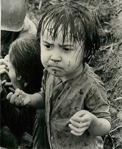 Bé gái bị thương do chiến sự và đang chờ được chăm sóc y tế ở Hiệp Đức, Quảng Nam, ngày 21/11/1965