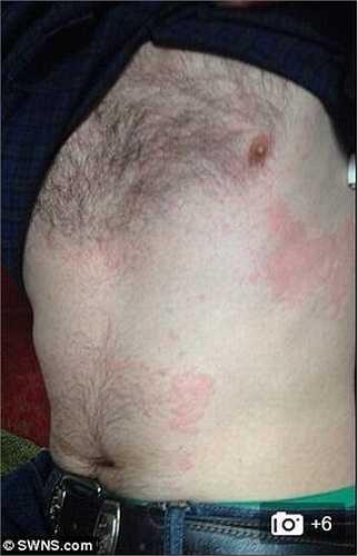 Hai ngày sau, anh phát hiện ra khuôn mặt của mình đã sưng húp bất thường và cơ thể của mình đỏ và ngứa.