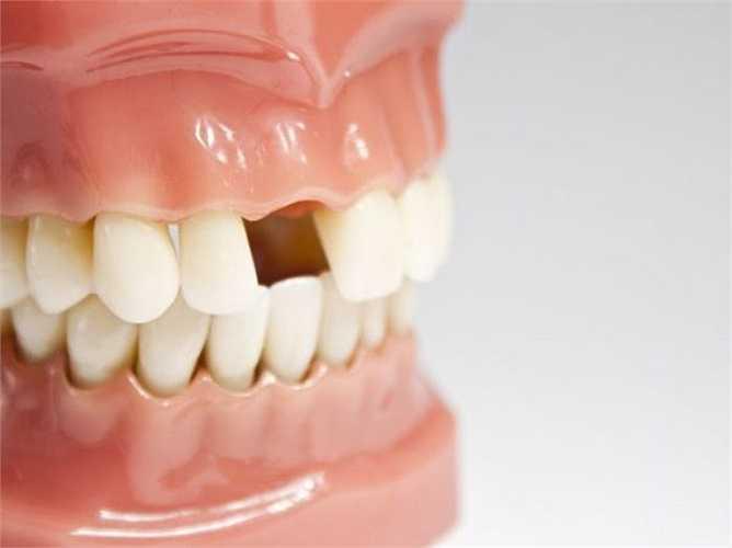 Rụng răng: Nếu bạn thường xuyên có một giấc mơ như răng tự rụng hoặc bị nhổ có nghĩa là bạn sợ mất một đồ vật hoặc một người nào đó thân thiết với bạn. Thông thường, giấc mơ này cũng được liên kết với những lo lắng về tài chính và tiền bạc.