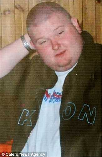 Paul Thorn, 30 tuổi có cân nặng là 186kg nhưng sau đó, anh đã giảm được 117kg sau khi tiến hành giải phẫu dạ dày vào năm 2007.